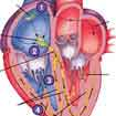 Electrical System of Heart Treatment In India