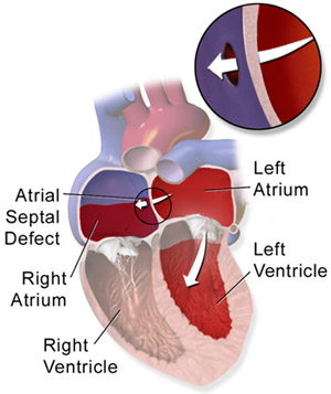 ASD closure surgery in india, Cost of ASD closure surgery in india, VSD closure surgery in india, Atrial Septal Defect Closure in India