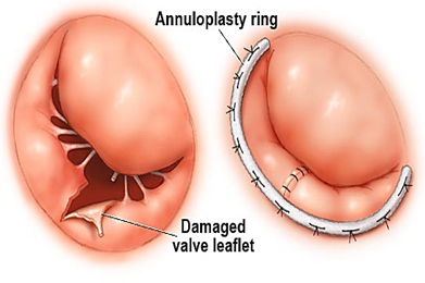 Heart valve replacement surgery hospital in india, low cost valve replacement surgery in india, Valve Surgeries in India