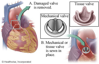 Heart Valve Replacement Surgery Cost in India, Heart Valve Replacement Surgery in India, Heart Valve Repair Surgery in India